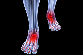 arthritic foot and ankle care treatment in Midtown & Downtown Manhattan: New York, NY 10038 and New York, NY 10036 as well as Forest Hills, NY 11375