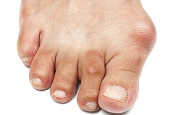 Bunions Removal, Surgery & Alternatives, Treatment & Recovery in Midtown & Downtown Manhattan: New York, NY 10038 and New York, NY 10036 as well as Forest Hills, NY 11375
