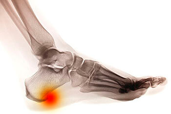 Heel spurs treatment in the Midtown & Downtown Manhattan: New York, NY 10038 and New York, NY 10036 as well as Forest Hills, NY 11375 area