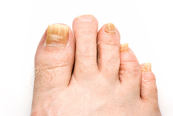 fungus toenails treatment in Midtown & Downtown Manhattan: New York, NY 10038 and New York, NY 10036 as well as Forest Hills, NY 11375 area